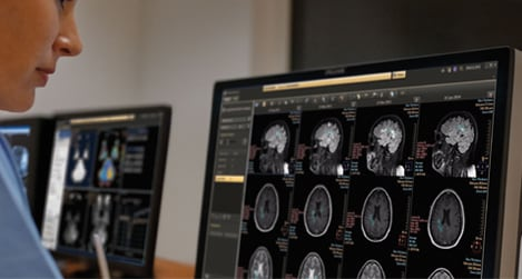 Clinicians analysing the patient data in advanced imaging visualization