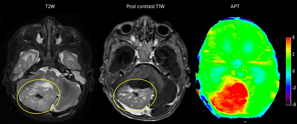 APT imaging of high-grade tumor