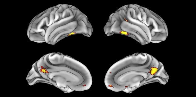 MultiBand SENSE fMRI faces vs places cortex