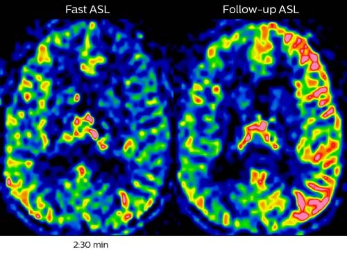 Acute right motor deficit and aphasia B