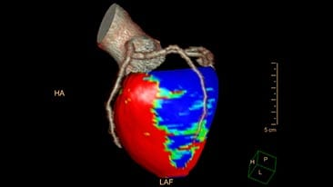 ct comprehensive cardiac analysis